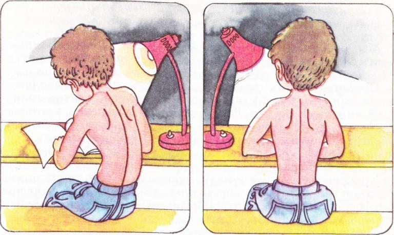 формирование правильной осанки у детей