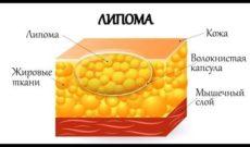 Процесс жиросжигания