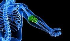 Витамины для костей и суставов названия